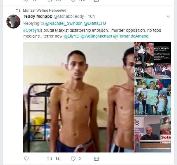 Venezuelan Socialist torture victim