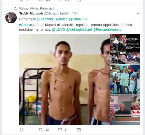 Starvation in Venezuela